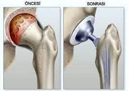 kalca-protezi